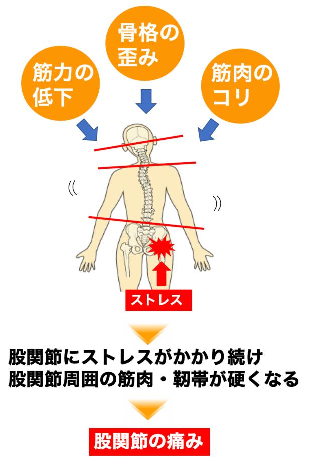 硬い 原因 股関節