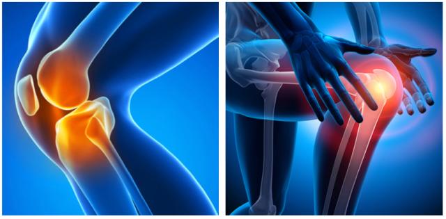 膝関節痛の図