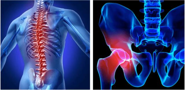 腰痛、坐骨神経痛のイラスト