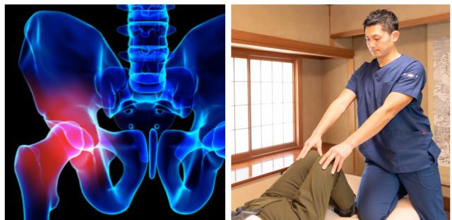 股関節痛の図